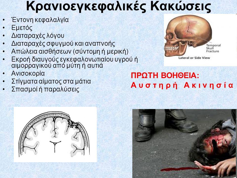 Κρανιοεγκεφαλικές Κακώσεις Έντονη κεφαλαλγία Εμετός Διαταραχές λόγου Διαταραχές σφυγμού και αναπνοής Απώλεια αισθήσεων (σύντομη ή μερική) Εκροή διαυγο