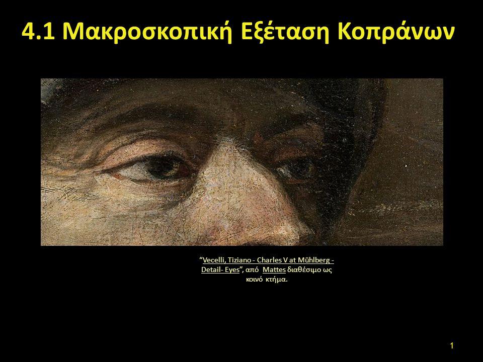"""4.1 Μακροσκοπική Εξέταση Κοπράνων """"Vecelli, Tiziano - Charles V at Mühlberg - Detail- Eyes"""", από Mattes διαθέσιμο ως κοινό κτήμα.Vecelli, Tiziano - Ch"""