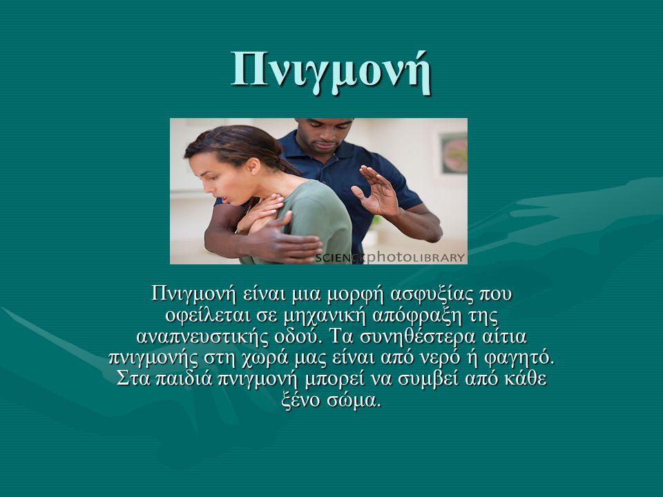 Πνιγμονή Πνιγμονή είναι μια μορφή ασφυξίας που οφείλεται σε μηχανική απόφραξη της αναπνευστικής οδού.
