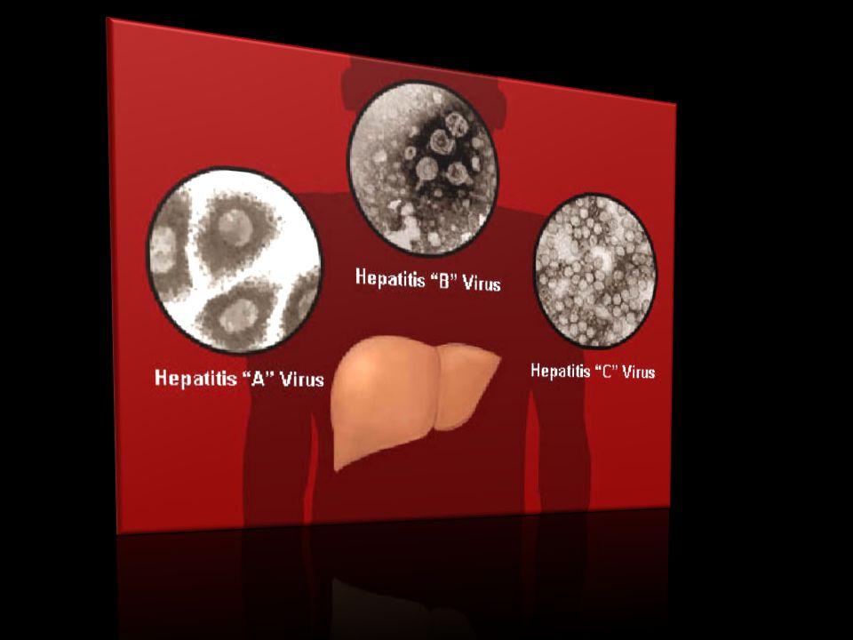 Ηπατιτιδα Α Η ηπατίτιδα Α είναι μια οξεία, συνήθως αυτοπεριοριζόμενη νόσος.