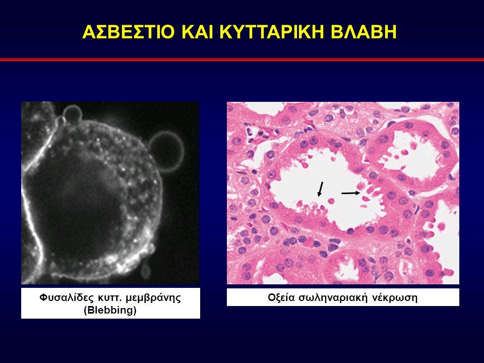 ΑΣΒΕΣΤΙΟ ΚΑΙ ΚΥΤΤΑΡΙΚΗ ΒΛΑΒΗ Φυσαλίδες κυττ. μεμβράνης (Blebbing) Οξεία σωληναριακή νέκρωση