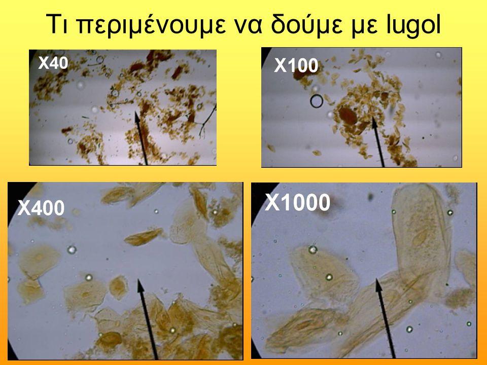 Προαιρετικά Αφαιρούμε λίγο δέρμα από το κάτω μέρος των νυχιών ήΑφαιρούμε λίγο δέρμα από το κάτω μέρος των νυχιών ή Από τη βάση του πάνω μέρους των νυχιώνΑπό τη βάση του πάνω μέρους των νυχιών