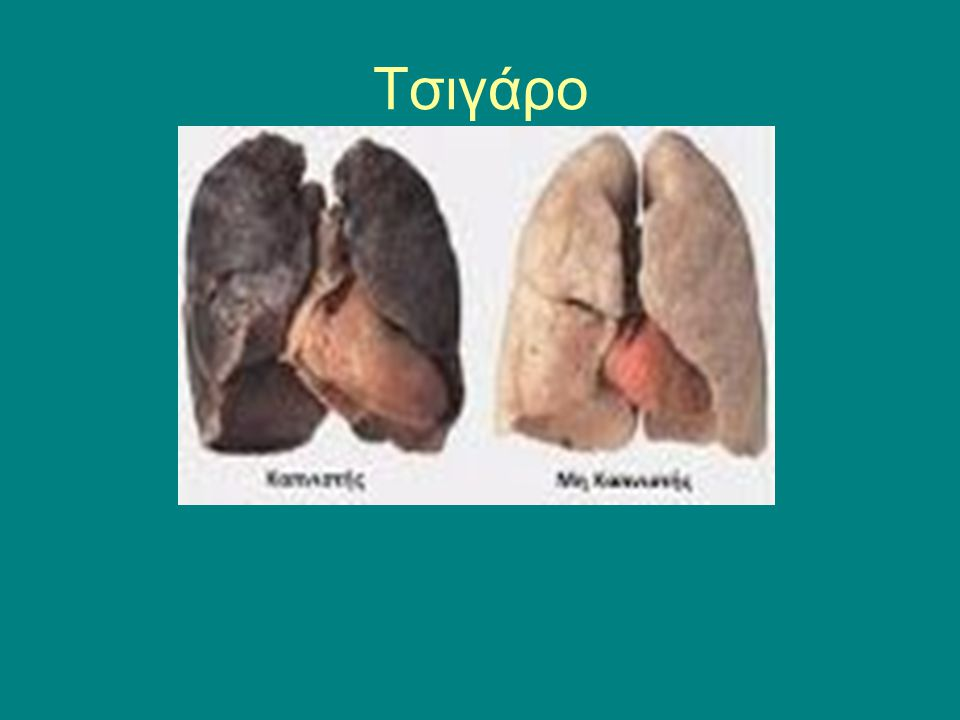 Τσιγάρο