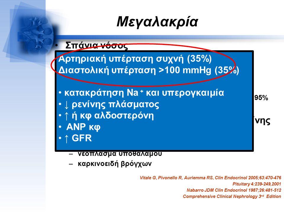 Μεγαλακρία Σπάνια νόσος Ηλικία έναρξης νόσου 30-35 έτη Ηλικία διάγνωσης 40-50 έτη Υπερέκκριση (GH): –αδένωμα των σωματοτρόφων κυττάρων υπόφυσης 95% –έ