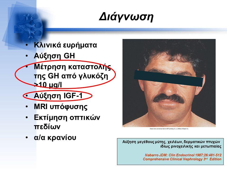 Διάγνωση Κλινικά ευρήματα Αύξηση GH Μέτρηση καταστολής της GH από γλυκόζη >10 μg/l Αύξηση IGF-1 MRI υπόφυσης Εκτίμηση οπτικών πεδίων α/α κρανίου Αύξηση μεγέθους μύτης, χειλέων, δερματικών πτυχών ιδίως ρινοχειλικής και μετωπιαίας Nabarro JDM: Clin Endocrinol 1987;26:481-512 Comprehensive Clinical Nephrology 3 rd Edition