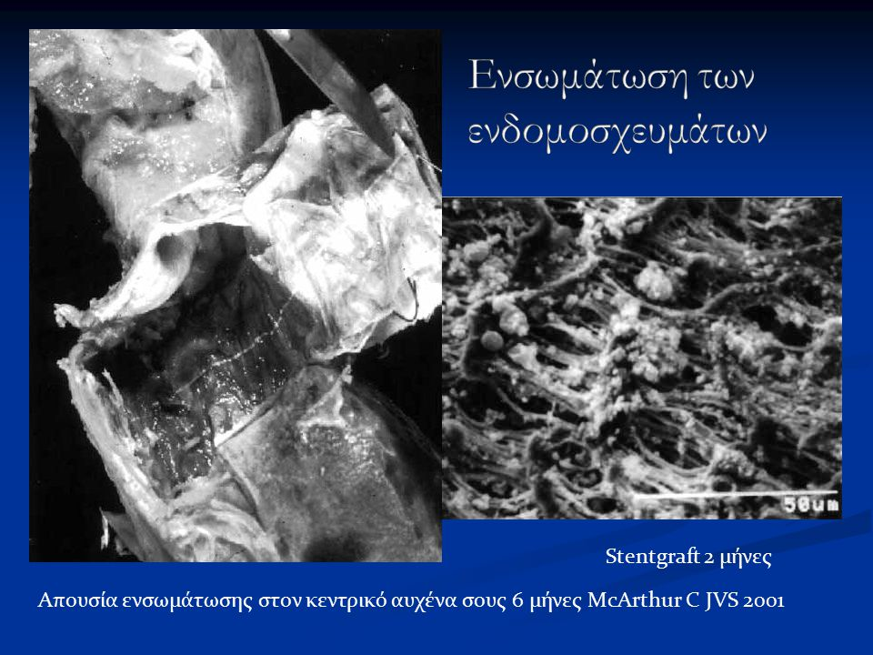 Stentgraft 2 μήνες Απουσία ενσωμάτωσης στον κεντρικό αυχένα σους 6 μήνες McArthur C JVS 2001