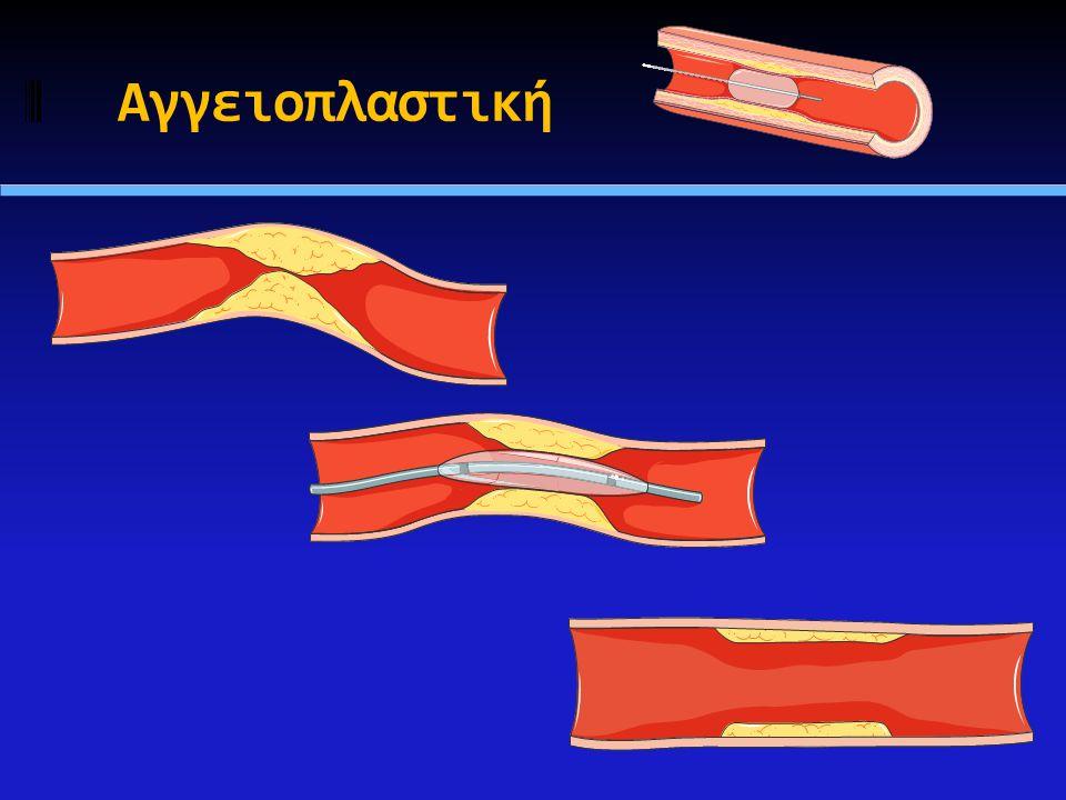 Βιολογική απάντηση στην αγγειοπλαστική με μπαλόνι  Αρχικά πιστευόταν ότι είναι το αποτέλεσμα της συμπίεσης της αθηροσκληρωτικής βλάβης και της ανακατασκευής της (remodeling)  Ο κύριος μηχανισμός δράσης της αγγειοπλαστικής με μπαλόνι είναι η διάταση των ελαστικών στοιχείων του αγγειακού τοιχώματος  Το ανελαστικό τμήμα του τοιχώματος (πλάκα) οδηγεί σε αρτηριακό διαχωρισμό  Ιστολογικά αποδεδειγμένος διαχωρισμός παρατηρείται στο σύνολο σχεδόν των αγγείων μετά από αγγειοπλαστική
