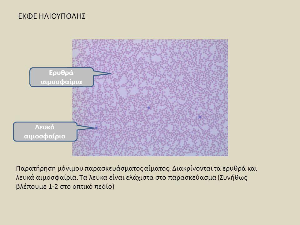 ΕΚΦΕ ΗΛΙΟΥΠΟΛΗΣ Παρατήρηση μόνιμου παρασκευάσματος αίματος. Διακρίνονται τα ερυθρά και λευκά αιμοσφαίρια. Τα λευκα είναι ελάχιστα στο παρασκεύασμα (Συ