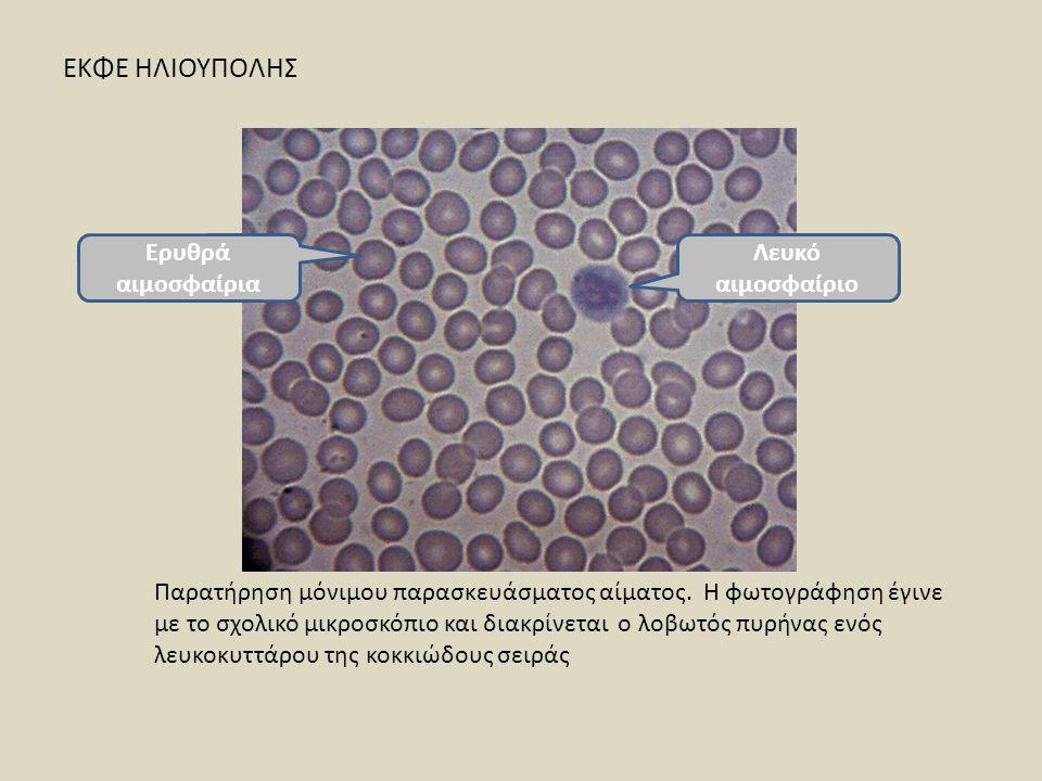 Παρατήρηση μόνιμου παρασκευάσματος αίματος. Η φωτογράφηση έγινε με το σχολικό μικροσκόπιο και διακρίνεται ο λοβωτός πυρήνας ενός λευκοκυττάρου της κοκ
