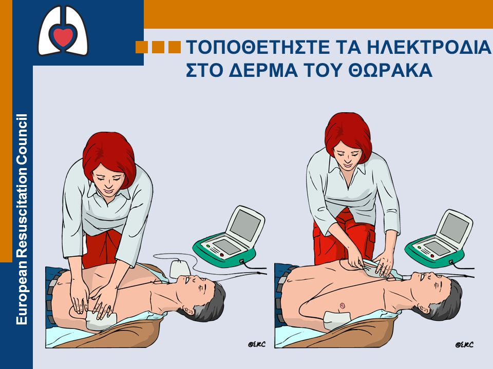 European Resuscitation Council ΤΟΠΟΘΕΤΗΣΤΕ ΤΑ ΗΛΕΚΤΡΟΔΙΑ ΣΤΟ ΔΕΡΜΑ ΤΟΥ ΘΩΡΑΚΑ