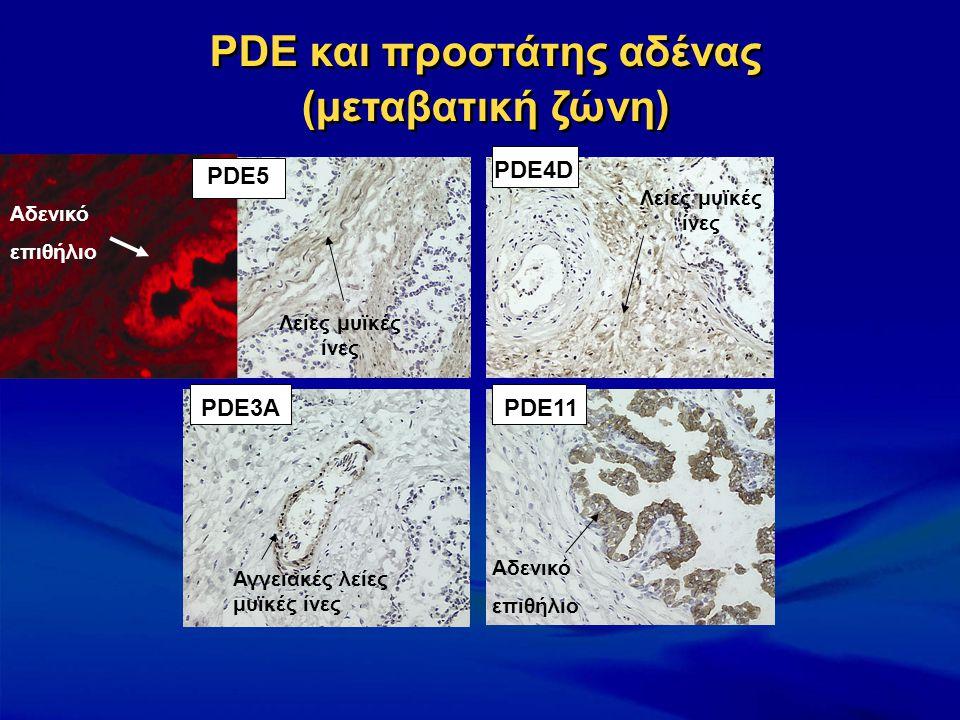 PDE και προστάτης αδένας (μεταβατική ζώνη) PDE4D PDE11PDE3A Αγγειακές λείες μυϊκές ίνες Αδενικό επιθήλιο Λείες μυϊκές ίνες PDE5 Αδενικό επιθήλιο