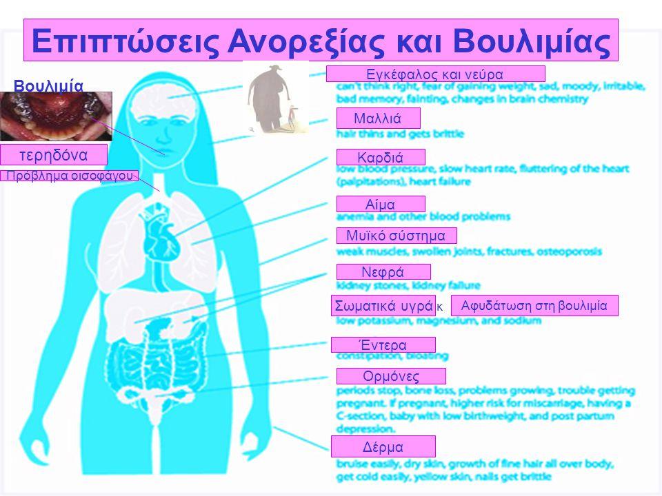 Επιπτώσεις Ανορεξίας και Βουλιμίας Εγκέφαλος και νεύρα Μαλλιά Καρδιά Αίμα Μυϊκό σύστημα Νεφρά Σωματικά υγρά Έντερα Ορμόνες Δέρμα τερηδόνα Βουλιμία Πρό