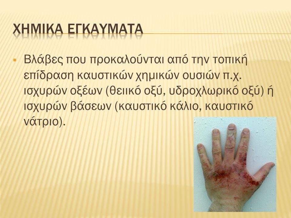  Βλάβες που προκαλούνται από την τοπική επίδραση του ηλεκτρισμού.