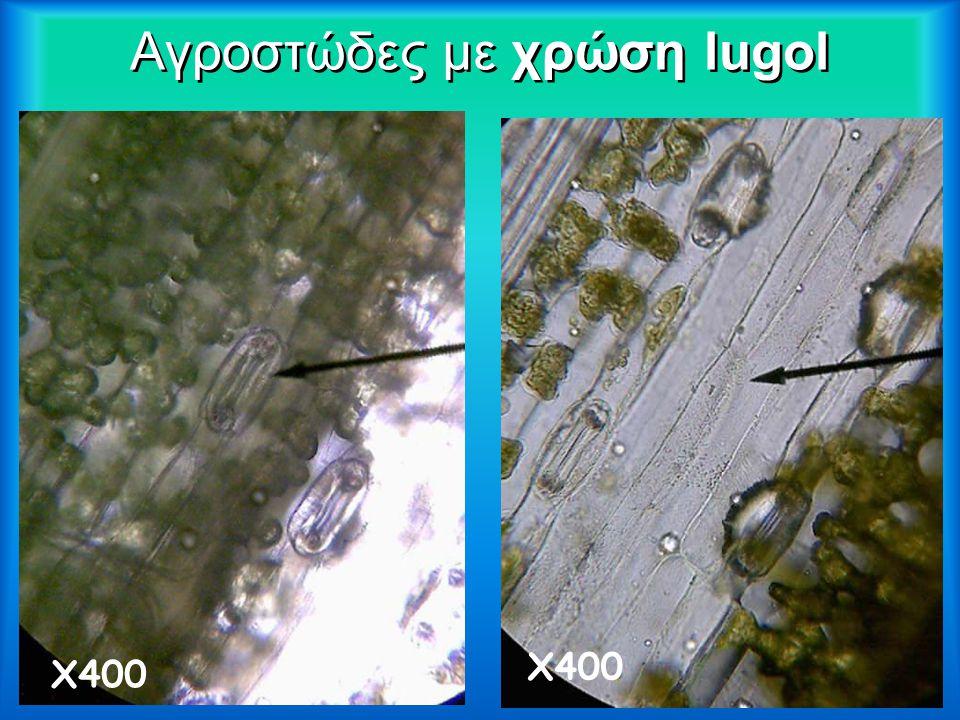 ArumArum ArumArum Χ40 Χ100 Χ400 Χ1000 χρώση lugol