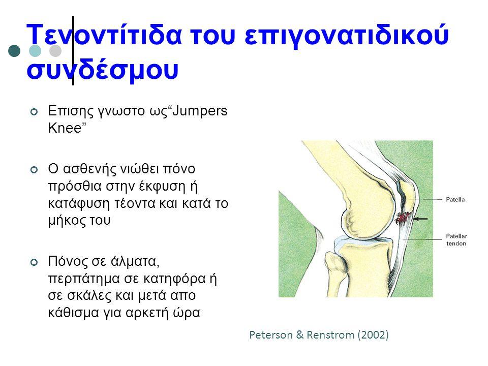 """Τενοντίτιδα του επιγονατιδικού συνδέσμου Επισης γνωστο ως""""Jumpers Knee"""" Ο ασθενής νιώθει πόνο πρόσθια στην έκφυση ή κατάφυση τέοντα και κατά το μήκος"""