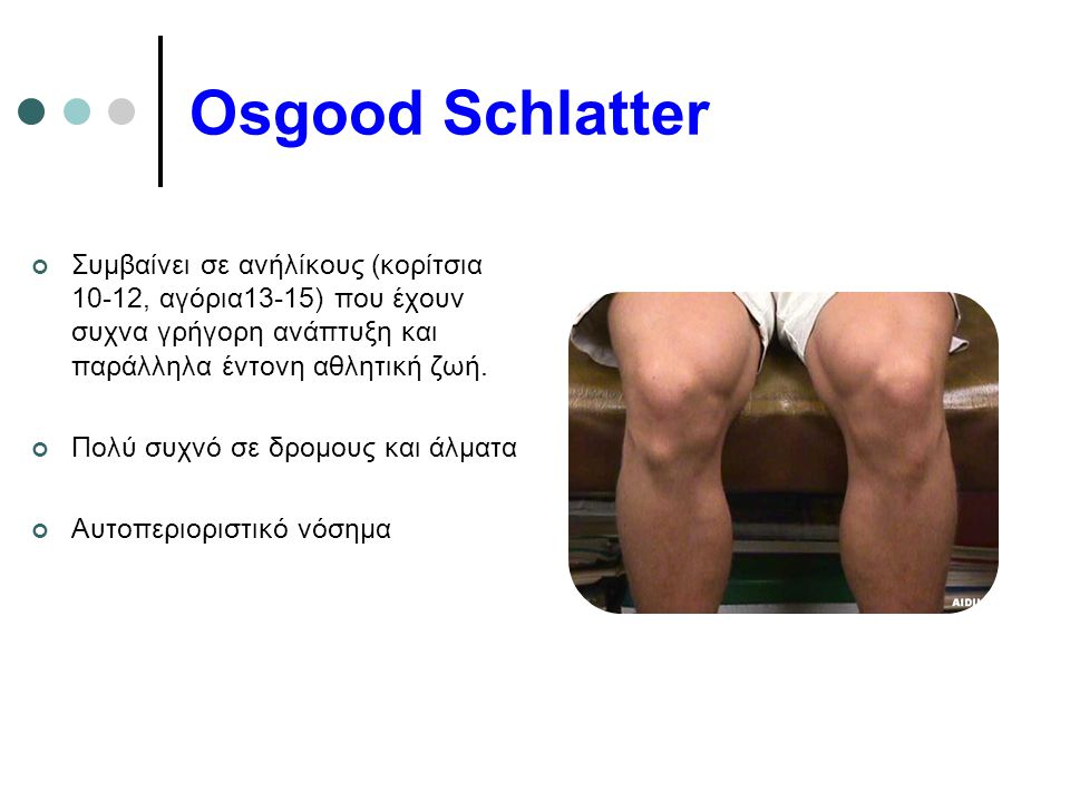 Osgood Schlatter Συμβαίνει σε ανήλίκους (κορίτσια 10-12, αγόρια13-15) που έχουν συχνα γρήγορη ανάπτυξη και παράλληλα έντονη αθλητική ζωή. Πολύ συχνό σ