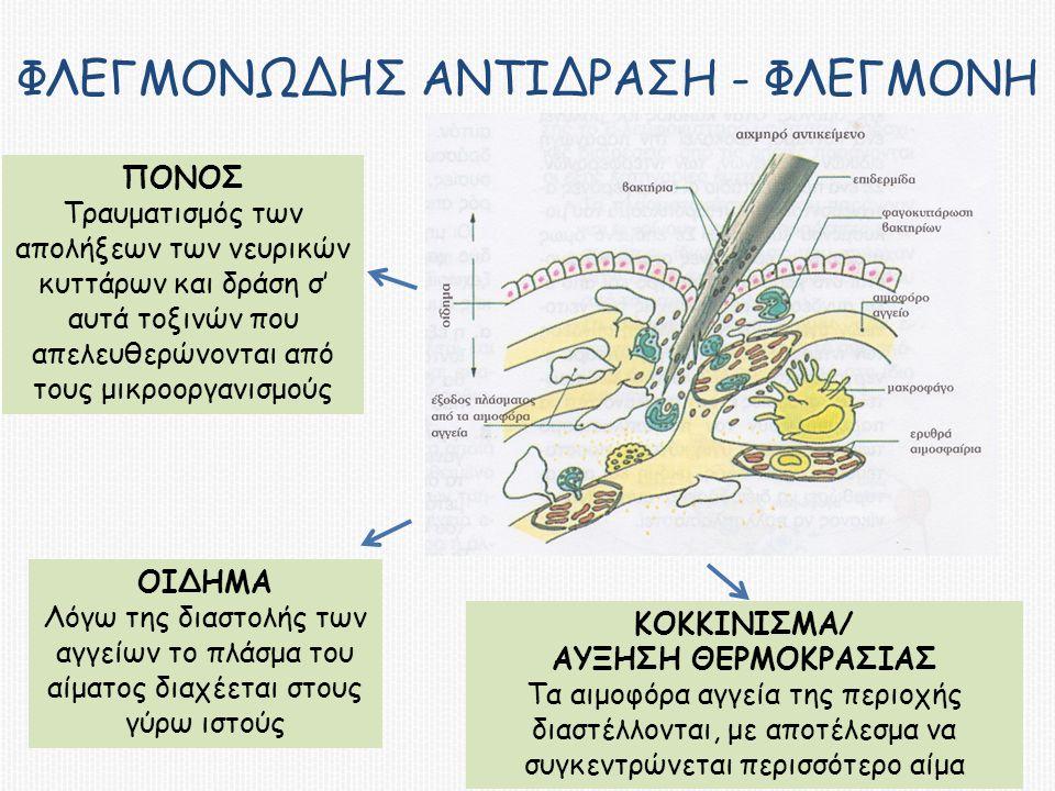 ΦΛΕΓΜΟΝΩΔΗΣ ΑΝΤΙΔΡΑΣΗ - ΦΛΕΓΜΟΝΗ ΠΟΝΟΣ Τραυματισμός των απολήξεων των νευρικών κυττάρων και δράση σ' αυτά τοξινών που απελευθερώνονται από τους μικροοργανισμούς ΟΙΔΗΜΑ Λόγω της διαστολής των αγγείων το πλάσμα του αίματος διαχέεται στους γύρω ιστούς ΚΟΚΚΙΝΙΣΜΑ/ ΑΥΞΗΣΗ ΘΕΡΜΟΚΡΑΣΙΑΣ Τα αιμοφόρα αγγεία της περιοχής διαστέλλονται, με αποτέλεσμα να συγκεντρώνεται περισσότερο αίμα