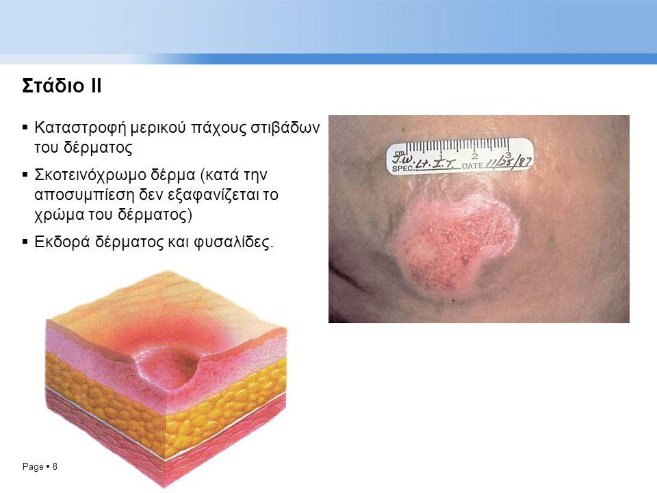 Page  8 Στάδιο ΙΙ  Καταστροφή μερικού πάχους στιβάδων του δέρματος  Σκοτεινόχρωμο δέρμα (κατά την αποσυμπίεση δεν εξαφανίζεται το χρώμα του δέρματο