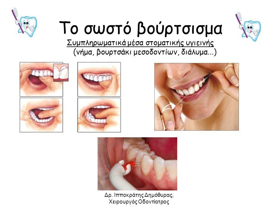 Το σωστό βούρτσισμα Συμπληρωματικά μέσα στοματικής υγιεινής (νήμα, βουρτσάκι μεσοδοντίων, διάλυμα...) Δρ. Ιπποκράτης Δημόθυρας, Χειρουργός Οδοντίατρος