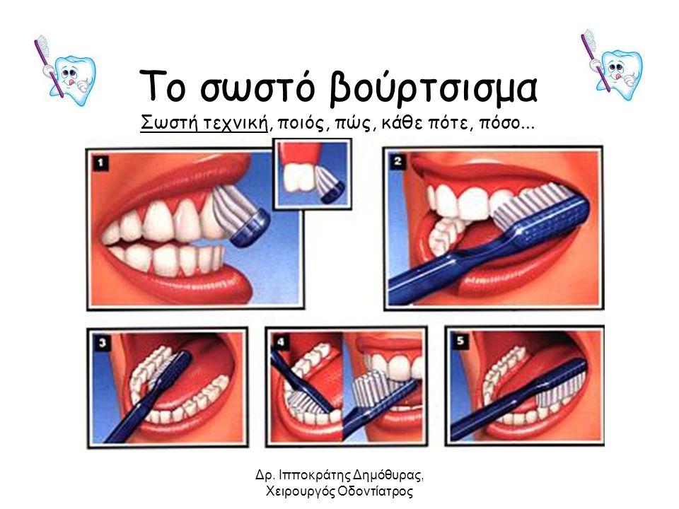 Το σωστό βούρτσισμα Σωστή τεχνική, ποιός, πώς, κάθε πότε, πόσο... Δρ. Ιπποκράτης Δημόθυρας, Χειρουργός Οδοντίατρος