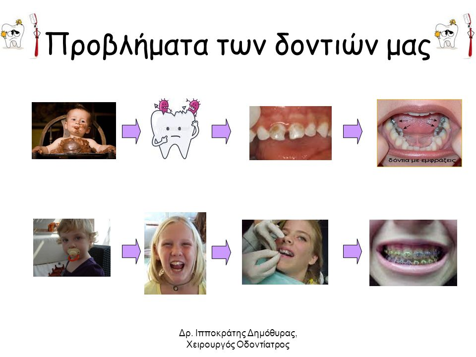 Δρ. Ιπποκράτης Δημόθυρας, Χειρουργός Οδοντίατρος Προβλήματα των δοντιών μας