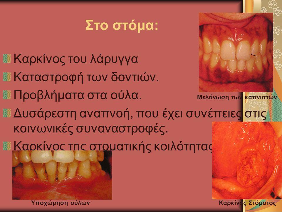 Στο στόμα: Καρκίνος του λάρυγγα Καταστροφή των δοντιών. Προβλήματα στα ούλα. Μελάνωση των καπνιστών Δυσάρεστη αναπνοή, που έχει συνέπειες στις κοινωνι