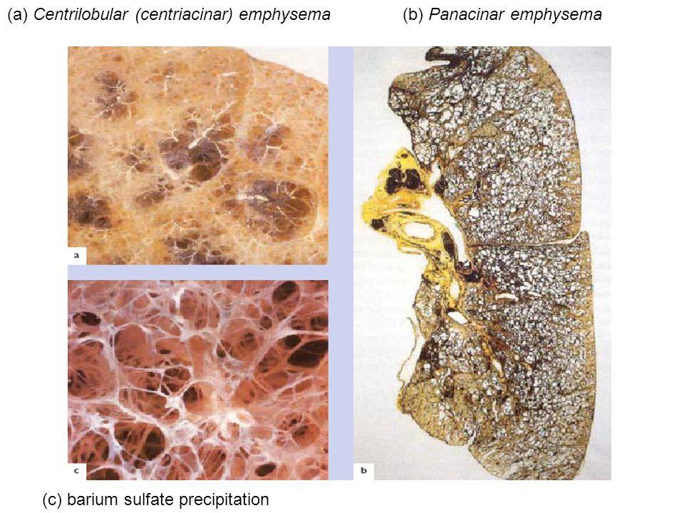 (a) Centrilobular (centriacinar) emphysema(b) Panacinar emphysema (c) barium sulfate precipitation