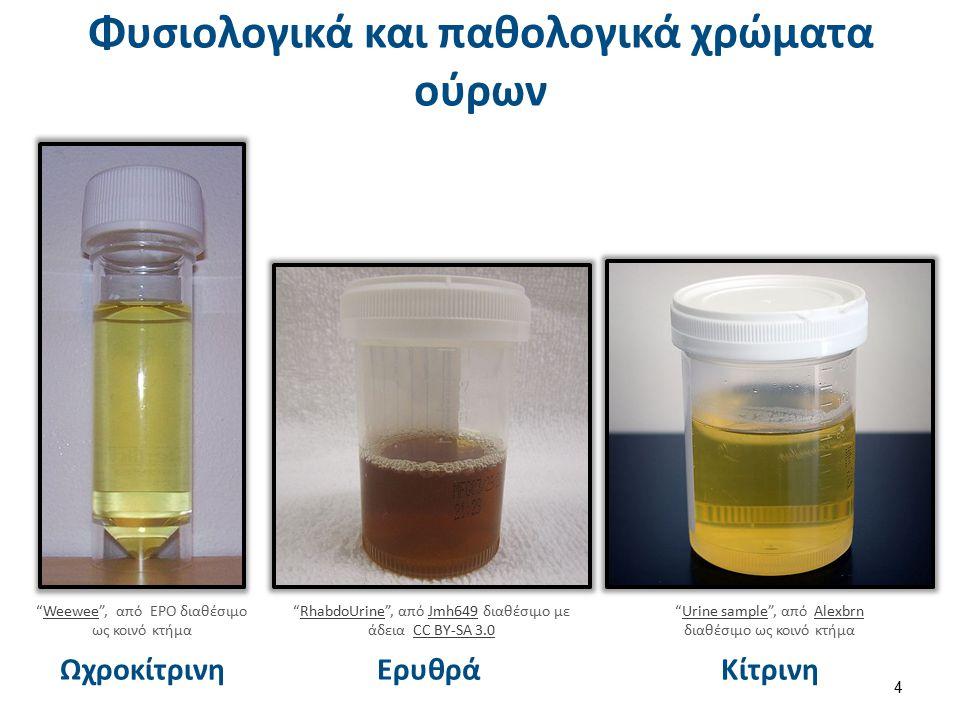 """Κίτρινη Φυσιολογικά και παθολογικά χρώματα ούρων 4 Ερυθρά """"RhabdoUrine"""", από Jmh649 διαθέσιμο με άδεια CC BY-SA 3.0RhabdoUrineJmh649CC BY-SA 3.0 """"Urin"""