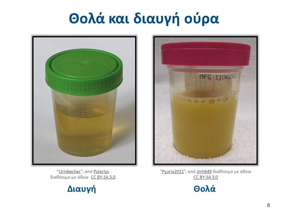 pH Η φυσιολογική τιμή για τους ενήλικες είναι 6, ενώ για τα νεογνά 5-7.