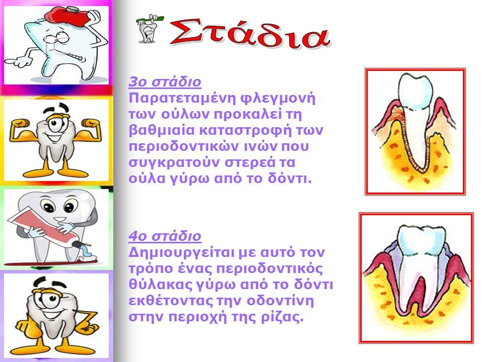 3ο στάδιο Παρατεταμένη φλεγμονή των ούλων προκαλεί τη βαθμιαία καταστροφή των περιοδοντικών ινών που συγκρατούν στερεά τα ούλα γύρω από το δόντι.