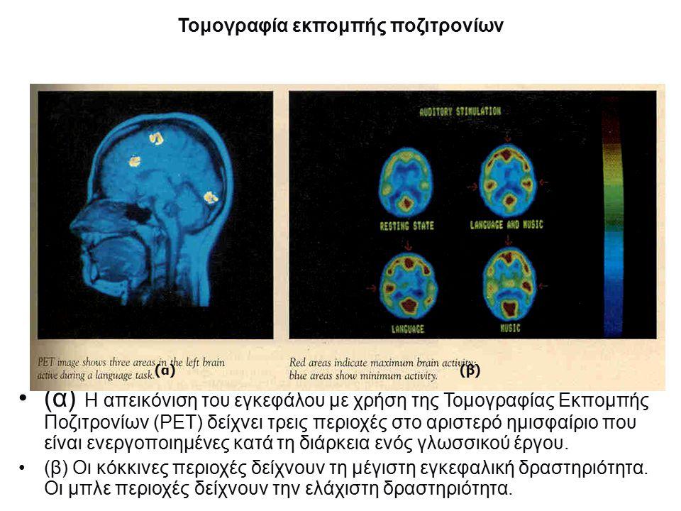 Τομογραφία εκπομπής ποζιτρονίων (α) Η απεικόνιση του εγκεφάλου με χρήση της Τομογραφίας Εκπομπής Ποζιτρονίων (ΡΕΤ) δείχνει τρεις περιοχές στο αριστερό ημισφαίριο που είναι ενεργοποιημένες κατά τη διάρκεια ενός γλωσσικού έργου.