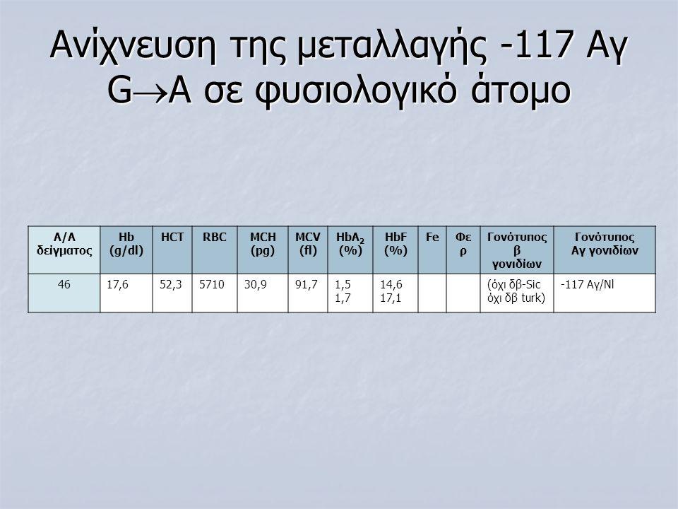 Ανίχνευση της μεταλλαγής -117 Αγ G  A σε φυσιολογικό άτομο Α/Α δείγματος Ηb (g/dl) HCTRBCMCH (pg) MCV (fl) ΗbA 2 (%) HbF (%) FeΦε ρ Γονότυπος β γονιδ