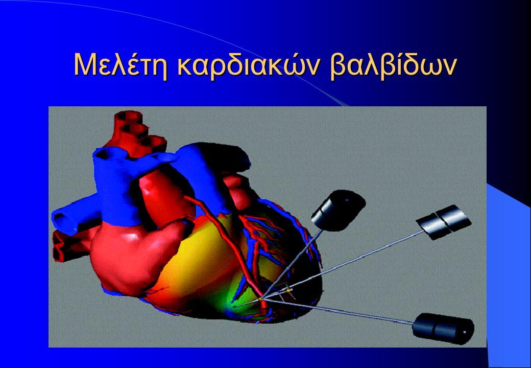 Μελέτη καρδιακών βαλβίδων