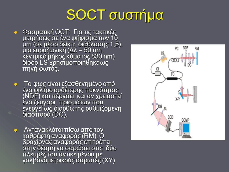 SOCT συστήμα Φασματική OCT: Για τις τακτικές μετρήσεις σε ένα ψήφισμα των 10 μm (σε μέσο δείκτη διάθλασης 1,5), μια ευρυζωνική (Δλ = 50 nm, κεντρικό μήκος κύματος 830 nm) δίοδο LS χρησιμοποιήθηκε ως πηγή φωτός.