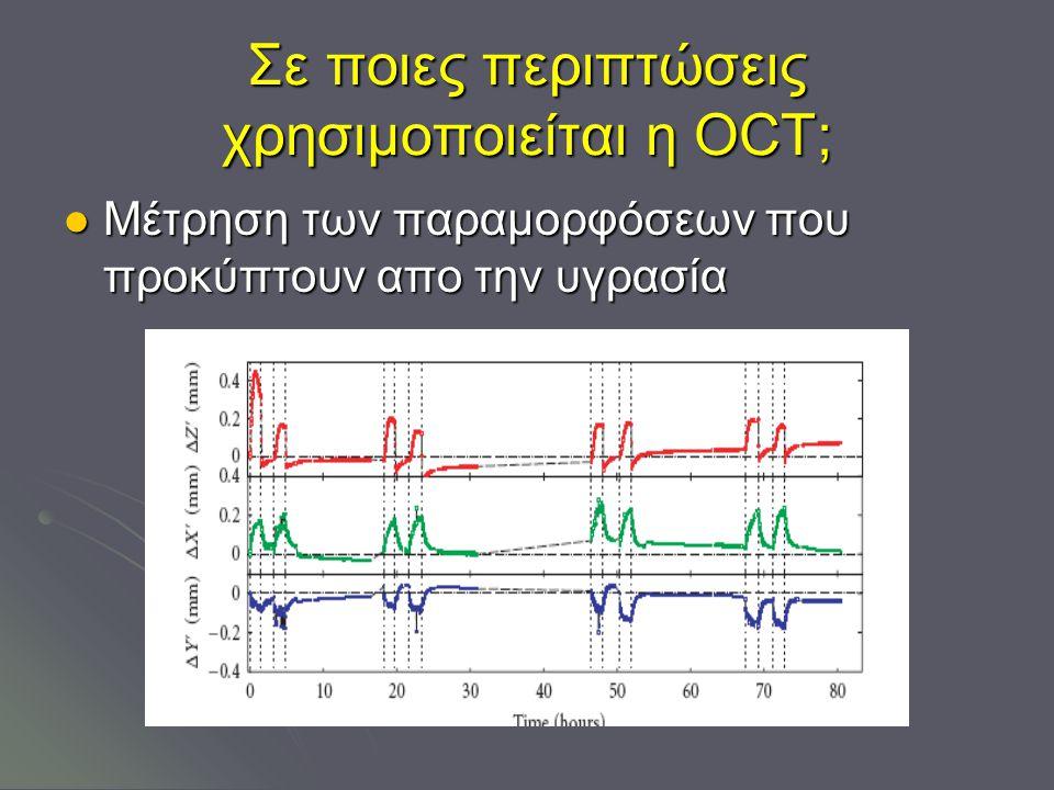 Σε ποιες περιπτώσεις χρησιμοποιείται η OCT; Μέτρηση των παραμορφόσεων που προκύπτουν απο την υγρασία Μέτρηση των παραμορφόσεων που προκύπτουν απο την