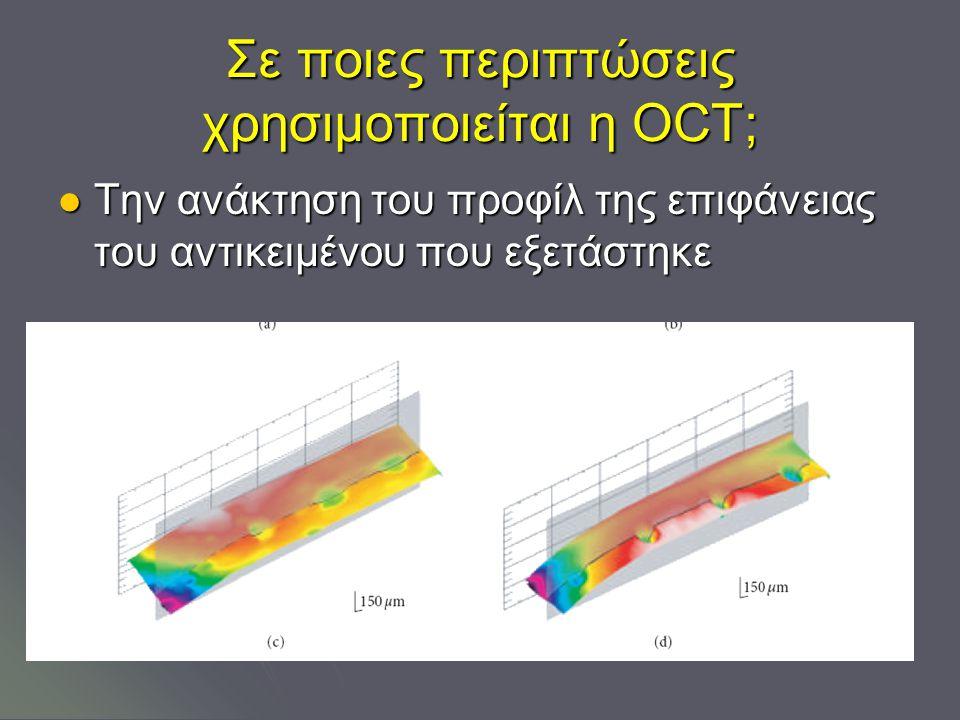 Σε ποιες περιπτώσεις χρησιμοποιείται η OCT; Την ανάκτηση του προφίλ της επιφάνειας του αντικειμένου που εξετάστηκε Την ανάκτηση του προφίλ της επιφάνειας του αντικειμένου που εξετάστηκε