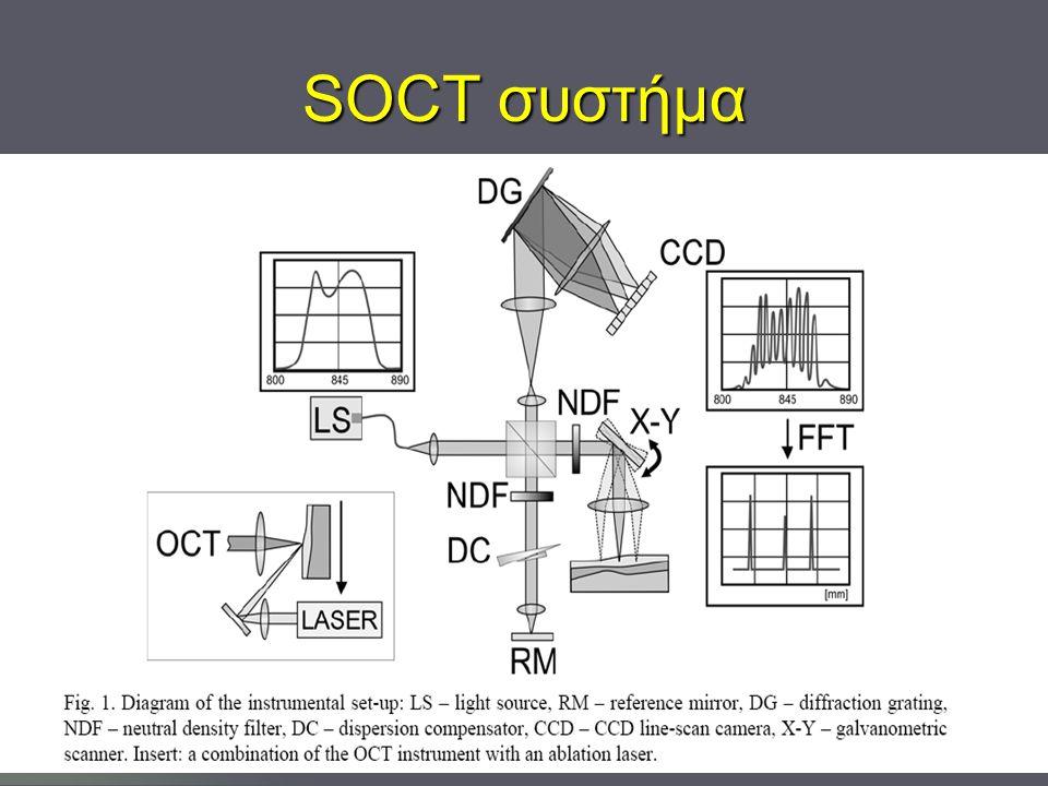 SOCT συστήμα
