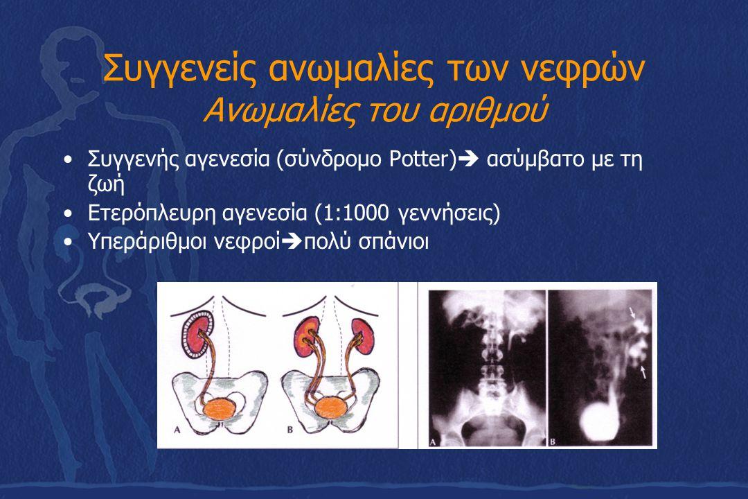 Συγγενείς ανωμαλίες της ουροδόχου κύστης Συγγενή εκκολπώματα και ανωμαλίες του ουραχού