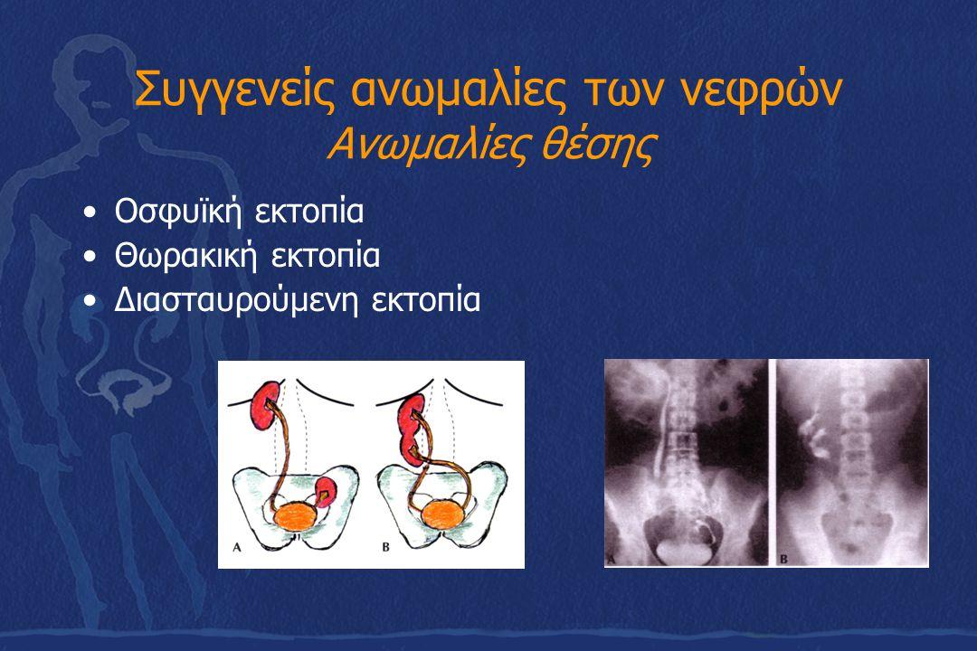 Συγγενείς ανωμαλίες των νεφρών Ανωμαλίες θέσης Οσφυϊκή εκτοπία Θωρακική εκτοπία Διασταυρούμενη εκτοπία