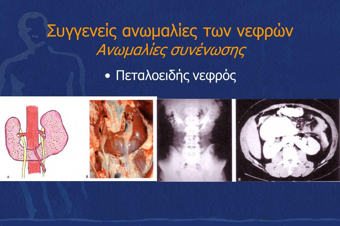 Συγγενείς ανωμαλίες των νεφρών Ανωμαλίες συνένωσης Πεταλοειδής νεφρός