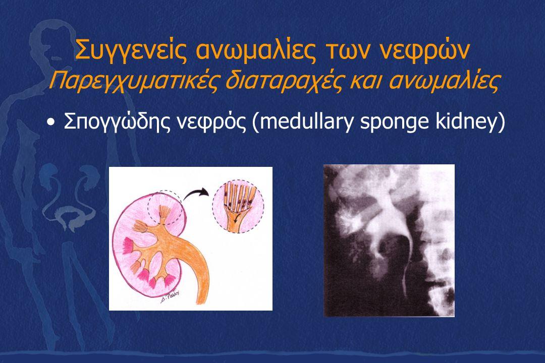 Συγγενείς ανωμαλίες των ουρητήρων Στένωση πυελοουρητηρικής συμβολής