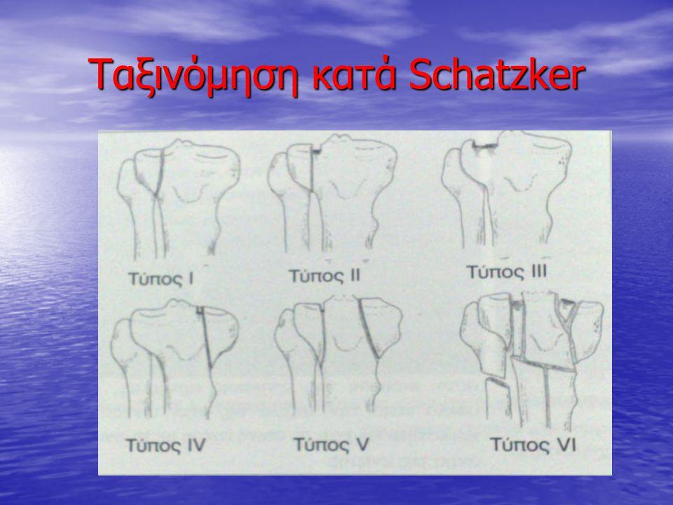 Ταξινόμηση κατά Schatzker