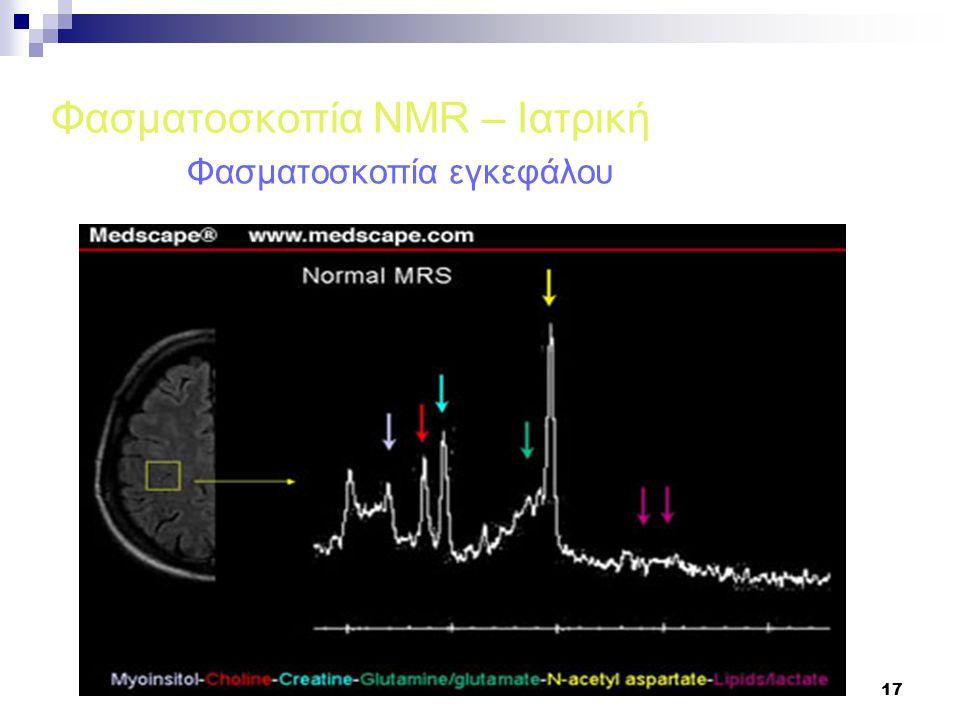 17 Φασματοσκοπία NMR – Ιατρική Φασματοσκοπία εγκεφάλου