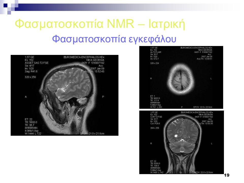 19 Φασματοσκοπία NMR – Ιατρική Φασματοσκοπία εγκεφάλου