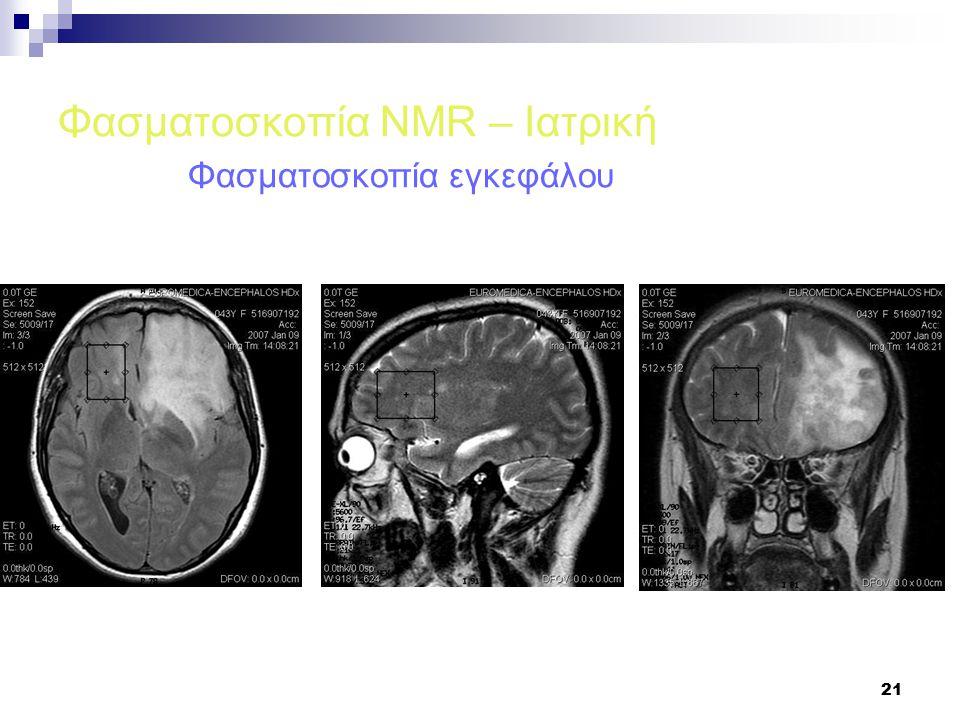 21 Φασματοσκοπία NMR – Ιατρική Φασματοσκοπία εγκεφάλου
