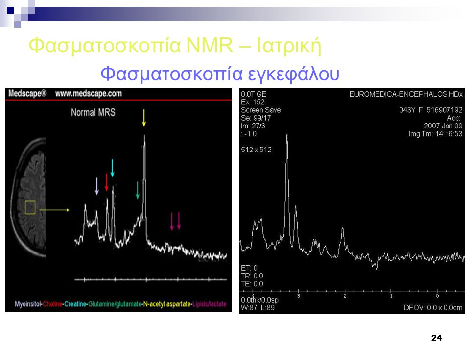 24 Φασματοσκοπία NMR – Ιατρική Φασματοσκοπία εγκεφάλου