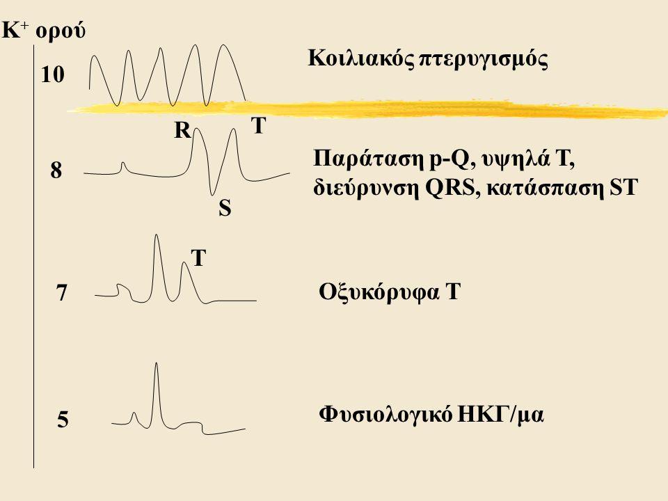 K + ορού 10 8 Τ R S Κοιλιακός πτερυγισμός Παράταση p-Q, υψηλά Τ, διεύρυνση QRS, κατάσπαση ST 7 Τ Οξυκόρυφα Τ 5 Φυσιολογικό ΗΚΓ/μα