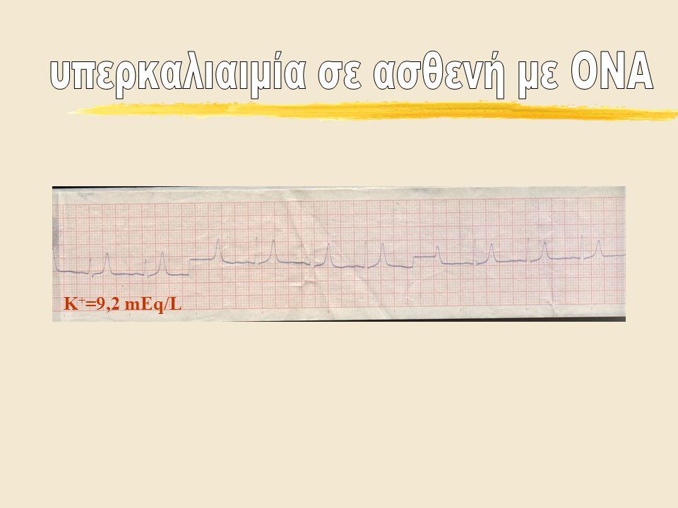 Κ + =9,2 mEq/L