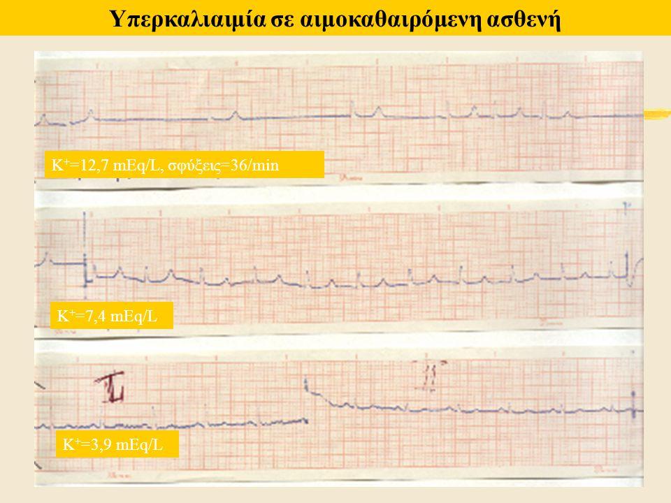 Κ + =12,7 mEq/L, σφύξεις=36/min Κ + =7,4 mEq/L Κ + =3,9 mEq/L Υπερκαλιαιμία σε αιμοκαθαιρόμενη ασθενή