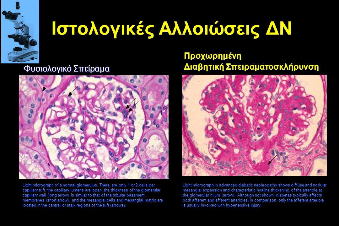 Ιστολογικές Αλλοιώσεις ΔΝ Light micrograph of a normal glomerulus. There are only 1 or 2 cells per capillary tuft, the capillary lumens are open, the